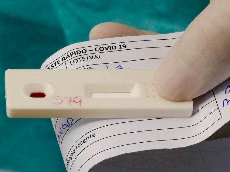 Cerca de 99% dos casos de síndrome com identificação laboratorial de vírus respiratório são referentes ao novo coronavírus