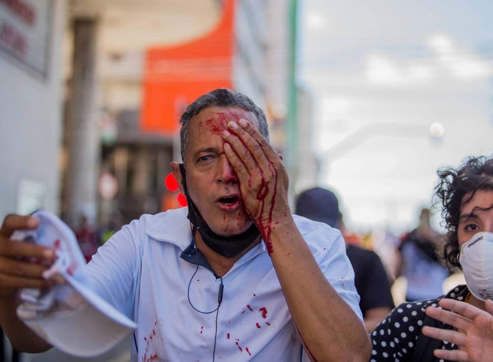 Ação violenta da polícia na manifestação em Pernambuco