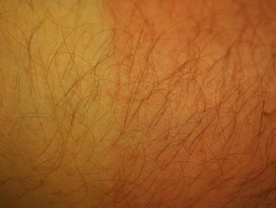 Câncer de pele corresponde a 33% dos diagnósticos de câncer no Brasil