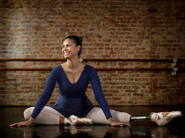 Cidade em Retratos: Mel Reis, a bailarina que amputou a perna esquerda para fazer o que ama
