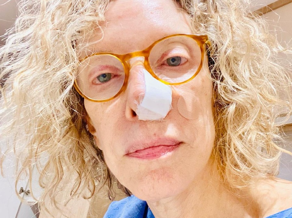 """Marília Gabriela descobre que """"espinha"""" no nariz era câncer de pele"""