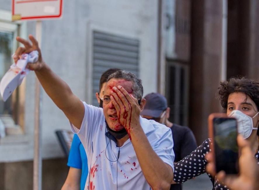 Homem atingido por bala de borracha em manifestação contra Bolsonaro no Pernambuco